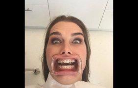 """""""Мой новый портрет"""", – пошутила актриса Брук Шилдс, запостив в Инстаграме своё селфи, сделанное в кабинете у стоматолога 23 января"""