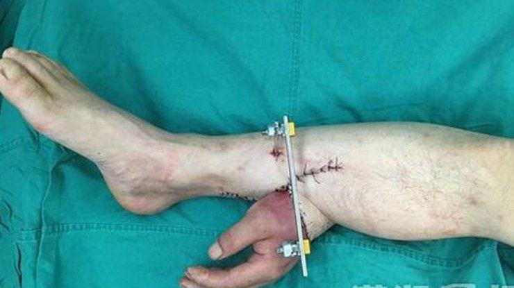расцветок ребенку отрезали руку сонник функциональное