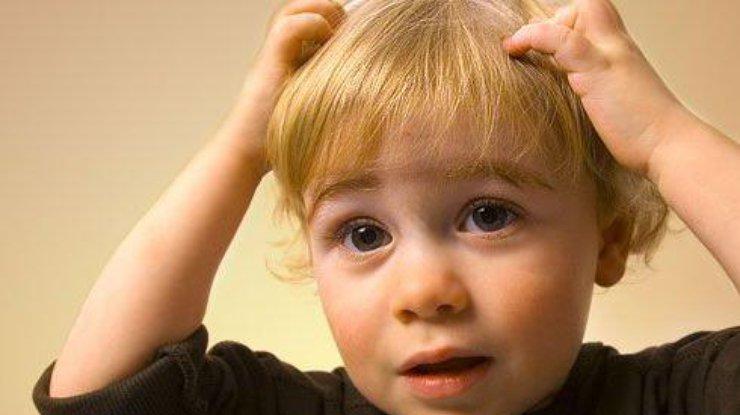 Генетики обнаружили гены, отвечающие заразмеры черепа