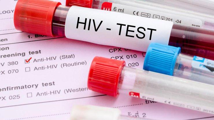 Геннадий Онищенко уверен, что ВИЧ-инфицированным можно усыновлять детей