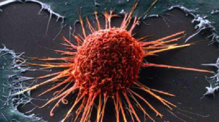 Ученые раскрыли одну изпричин неизлечимости рака