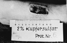 Руки жертвы свидетельствует о глубоких ожогах от фосфора в Равенсбрюк, Германия, в ноябре 1943 года