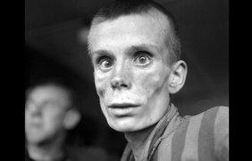 18-летняя девушка смотрит в объектив камеры во время освобождения из концентрационного лагеря Дахау в 1945 году