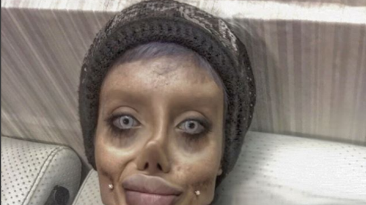 Иранка сделала 50 пластических операций, чтобы выглядеть, как Анджелина Джоли