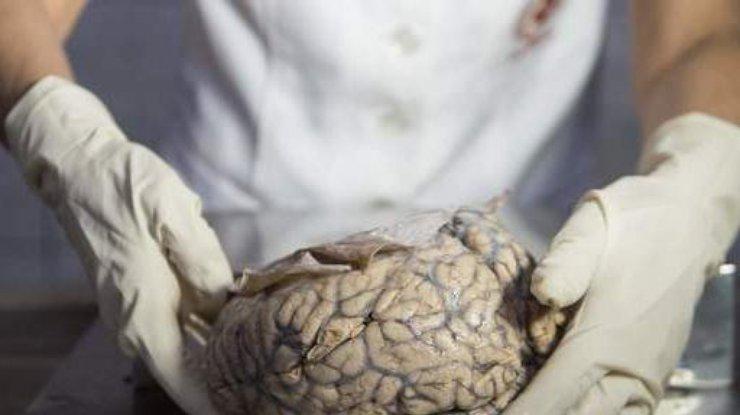 После смерти мозг человека продолжает работать