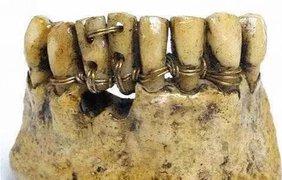 Так вставляли зубы