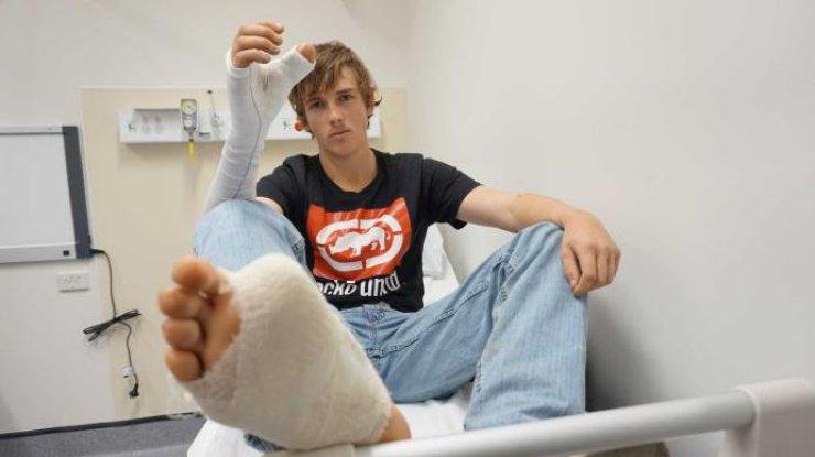 ВАвстралии мужчине пересадили большой палец ноги наруку