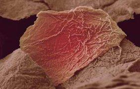 Обгоревшие клетки кожи