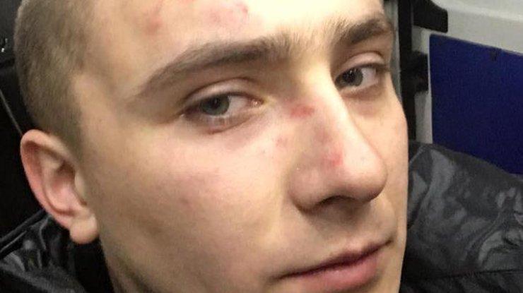 На Стерненко напали возле его дома. Фото: facebook.com/sternenko