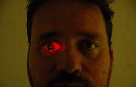 Мужчина заменил потерянный глаз/ Фото: The Eyeborg Project