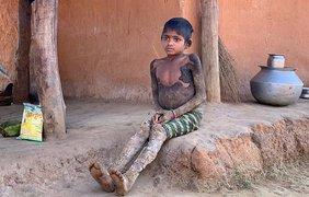 """ребенок превращается в """"камень""""/ Фото: Jam Press"""