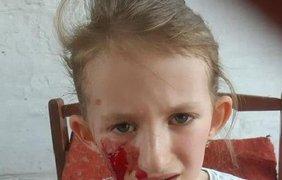 """Собака напала на девочку/ Фото: """"Днепр Сейчас"""""""