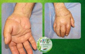 Медики пришили мужчине руку/ Фото: niknews.mk.ua