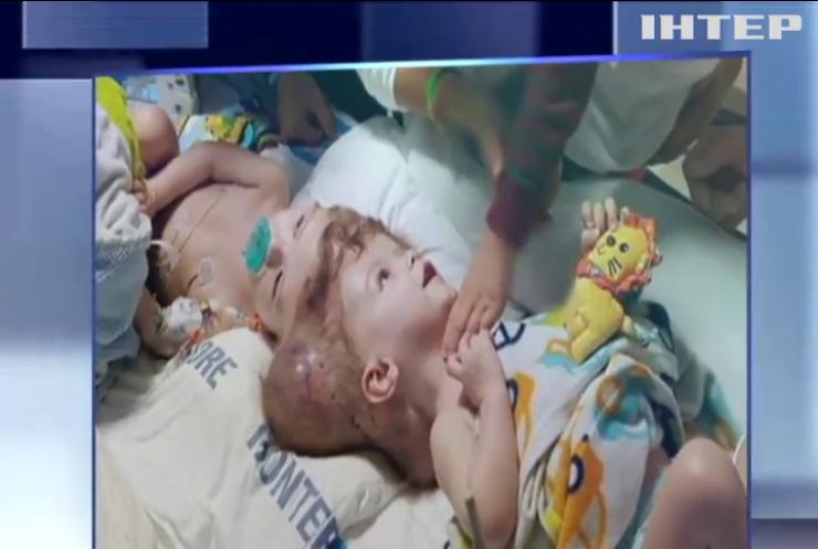 Медики США успішно розділили сиамських близнюків
