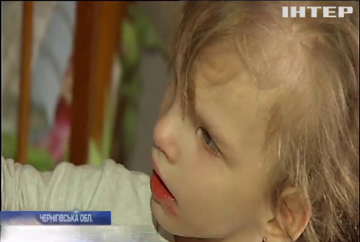 Маленька Настя потребує невідкладного лікування тяжкої хвороби