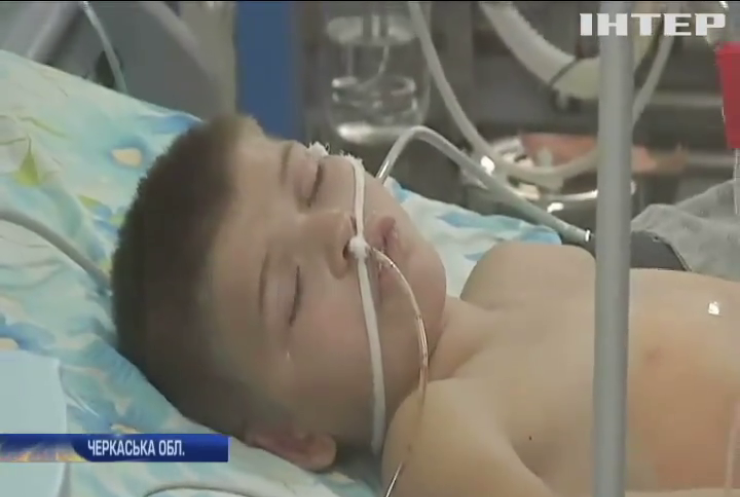 На Черкащині школярів звинуватили у побитті 8-річного хлопчика