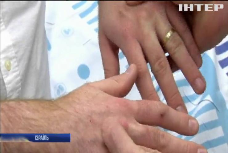 Медики розробили спрей проти ран та опіків