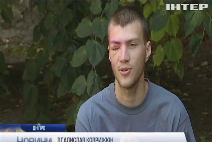 У Дніпрі рятують двох військовослужбовців з пошкодженнями очей