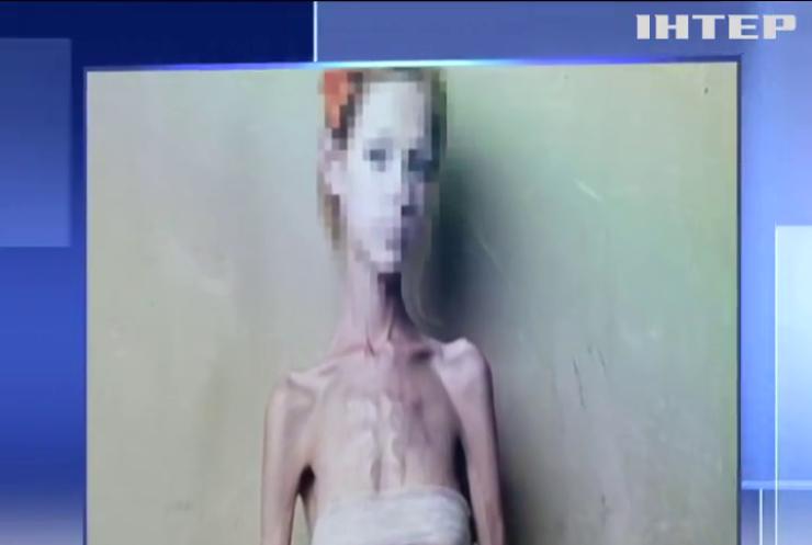 Смерть від анорексії: дівчина з Черкас вкоротила собі віку голодуванням