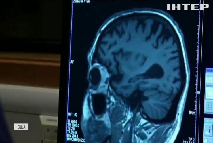 У США вперше застосували ліки від хвороби Альцгеймера