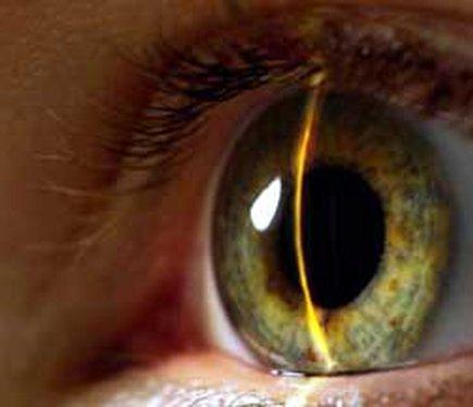 Операции по восстановлению зрения хабаровск