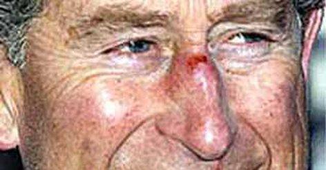 Чем лечить содранную кожу на носу