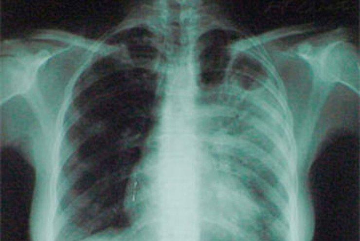 Сегодня отмечается Всемирный день борьбы с туберкулезом