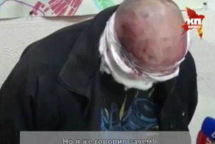 Пленники сепаратистов переживают жуткие пытки (видео)