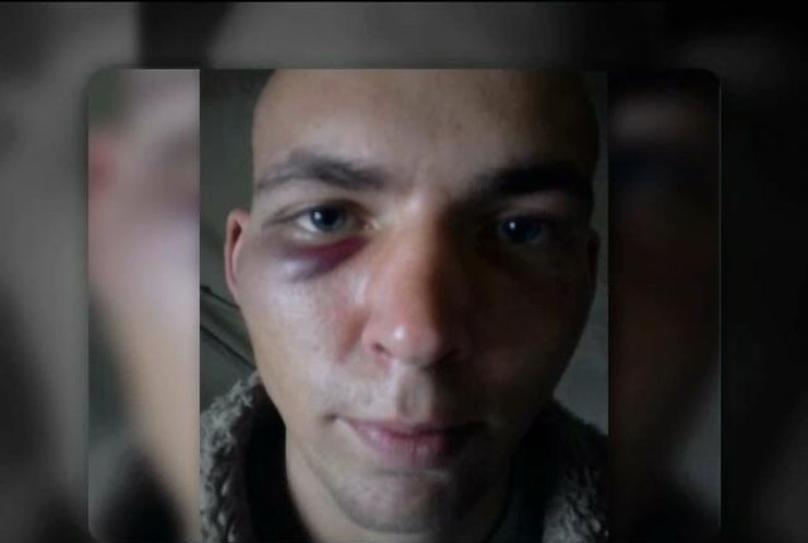 Прокуратура расследуют избиение заключенного в Кировоградской области