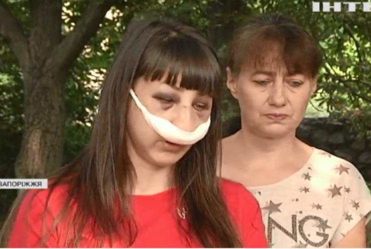 Переслідування колишньої: у Запоріжжі чоловік жорстоко побив дівчину