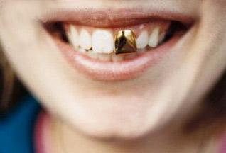 Сонник золотые зубы не своими руками