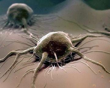 Эксперты знают, чем питаются раковые опухоли.