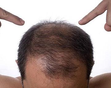 Возможно мелироваться и отрастить длинные волосы