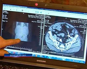 Донецкий хирург забыл в теле пациента зажим