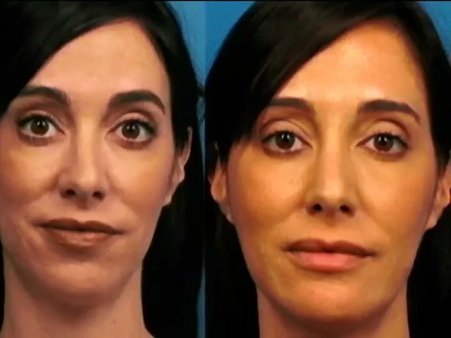 Американка сделала пластику лица для аватара в соцсетях (видео)