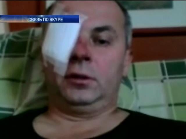 Нестор Шуфрич не верит в расследование Авакова (видео)